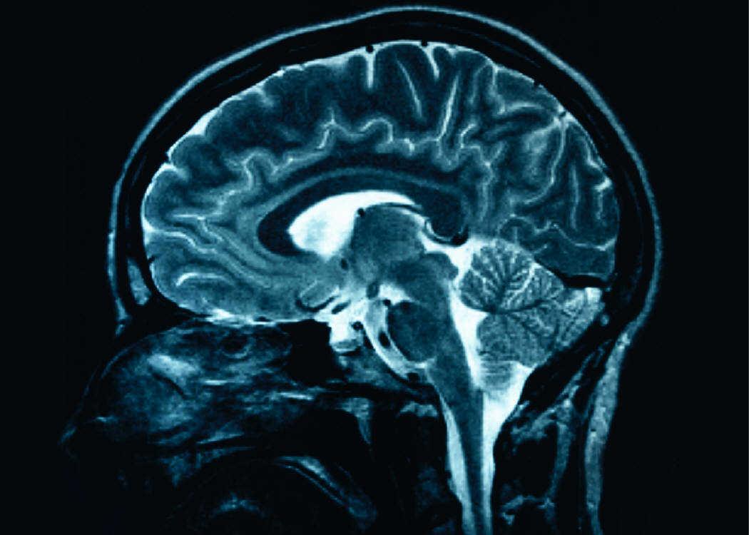 Τσιπάκι που θα εμφυτεύεται στον εγκέφαλο για επαναφορά της μνήμης προσεχώς..