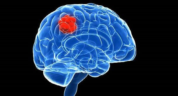 Ο καρκίνος του εγκεφάλου συνδέεται και με την υψηλή μόρφωση